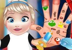 Игры Малышка Эльза операция на руке